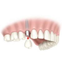 Implante con una pieza