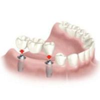 Implante dos piezas