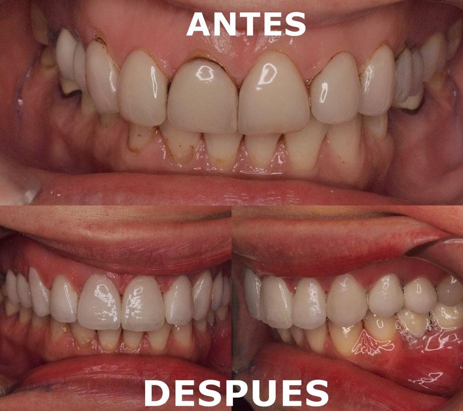 Caso 01 antes y después del tratamiento