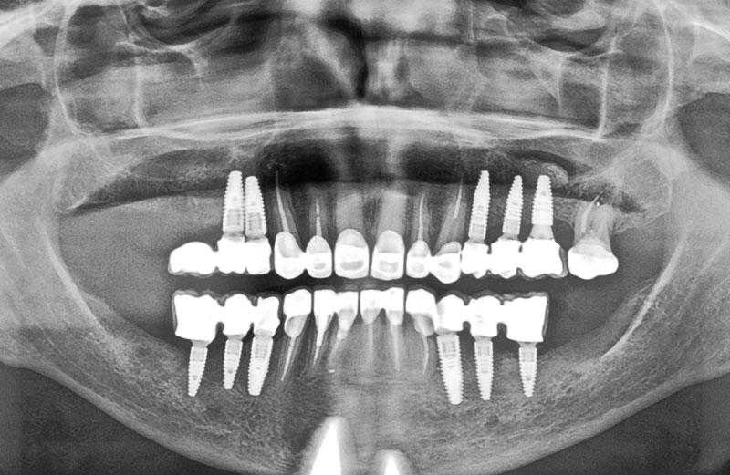 Implantes y corona de Zirconio