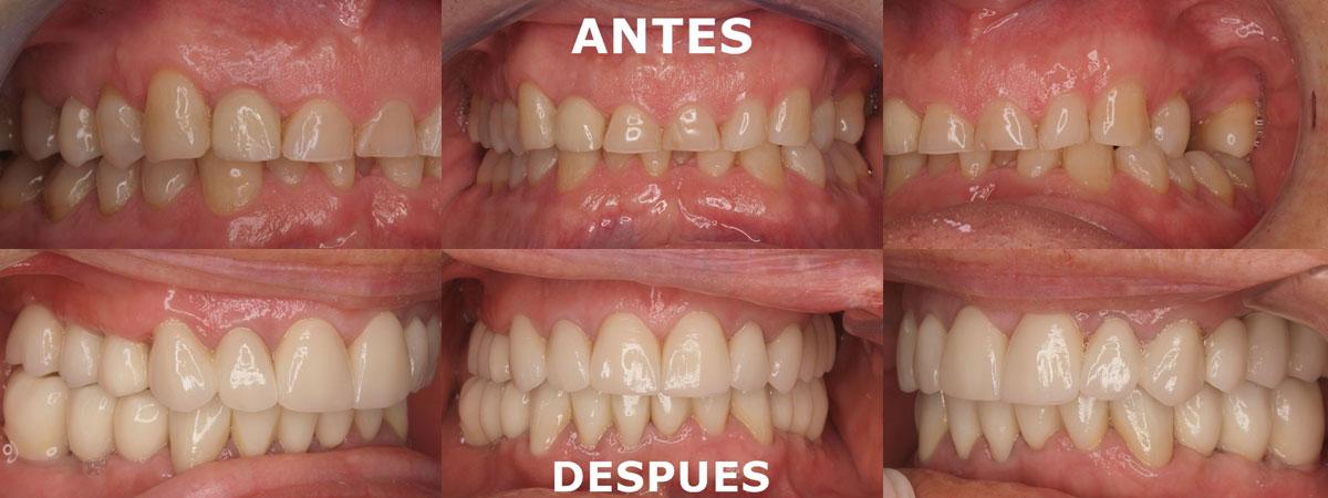 Caso 02 antes y después del tratamiento